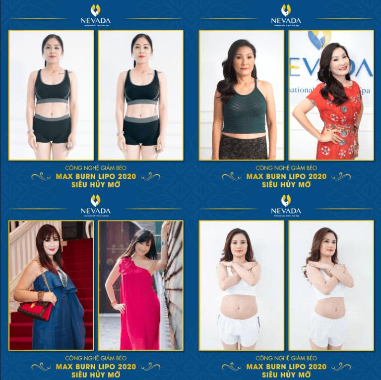 giá giảm béo toàn thân, giá giảm mỡ toàn thân, chi phí giảm béo toàn thân, giảm cân toàn thân giá bao nhiêu, giảm mỡ toàn thân giá, giảm mỡ toàn thân giá bao nhiêu,